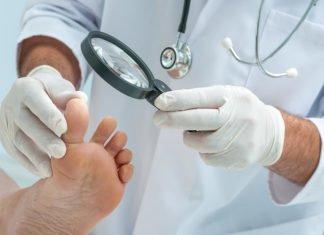 Grzybcia paznokci może być łatwo zdiagnozowana poprzez badanie lekarskie