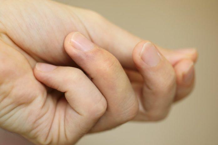 Sine paznokcie mogą być objawem choroby